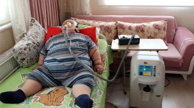 Hormon eksikliği yüzünden 90 kiloya ulaşan 5 yaşındaki çocuk çaresizce yardım bekliyor